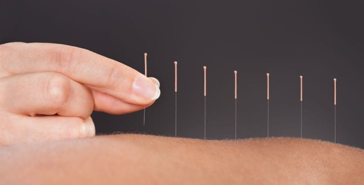 Treat Inflammation With Acupuncture - Cooking in Stilettos